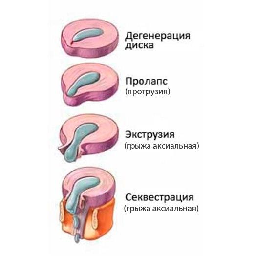 медианная грыжа диска с компрессией дурального мешка